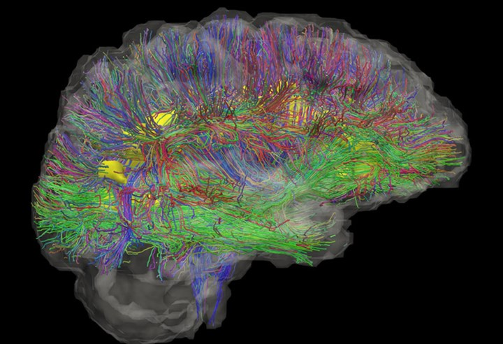 News720wiring The Brain Credit Mark Bastin University Of Edinburgh
